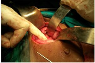 Some operative photographs of hepaticoduodenostomy