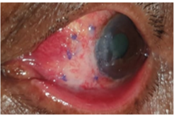 conjunctival autograft with sutures